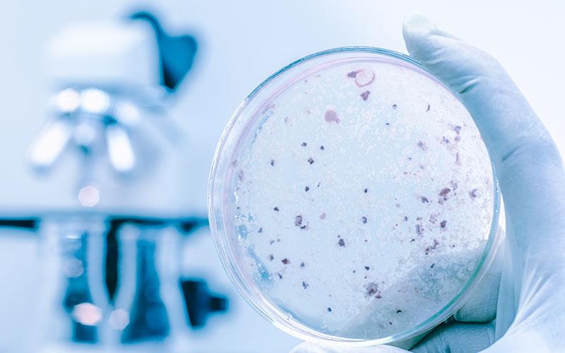 Bacteria on petri dish