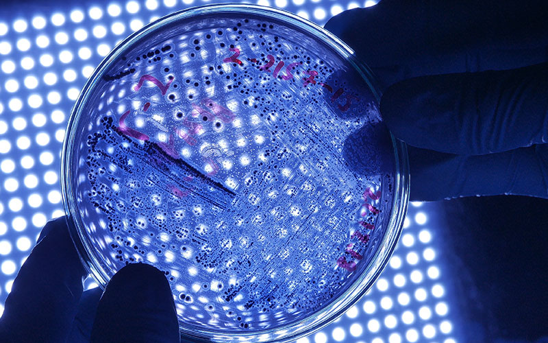 Petri dish with Legionnaires disease