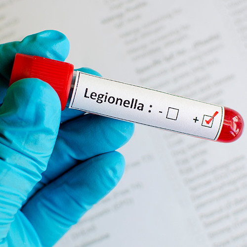 Legionella blog part 2 thumb